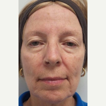 55-64 year old woman treated with Restylane Lyft to cheeks and marionettes before 2363720