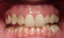 25-34 year old patients  treated with Digitally produced Cerac Crowns before 3093028