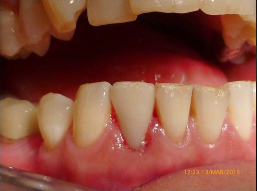 25-34 year old patients  treated with Digitally produced Cerac Crowns 3093028