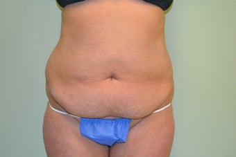 44 Year Old Female Abdominoplasty before 1455200