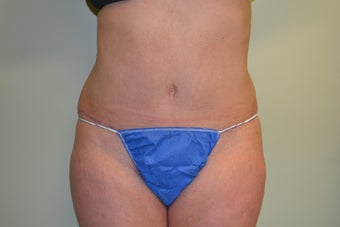 44 Year Old Female Abdominoplasty after 1455200