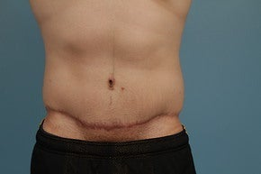 Abdominoplasty after 1065507