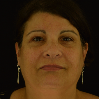 35-44 year old woman s/p bilat. temporal brow lift, right blepharoplasty, and ptosis repair