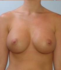 Breast Augmentation after 621533