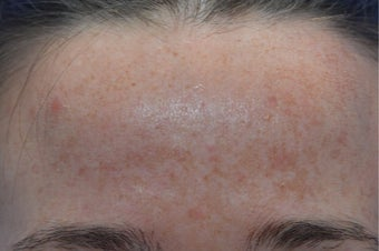 25-34 year old woman treated with Laser Resurfacing before 3141104