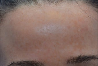 25-34 year old woman treated with Laser Resurfacing after 3141104