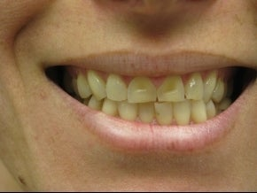 BriteSmile in-office bleaching and 6 porcelain crowns. before 996248