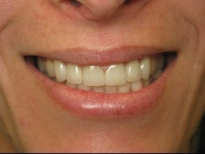 BriteSmile in-office bleaching and 6 porcelain crowns. after 996248