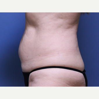 CoolSculpting before 2898891