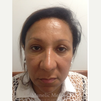 45-54 year old woman treated with Facelift after 3647470