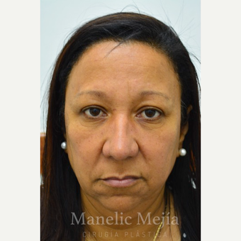 45-54 year old woman treated with Facelift before 3647470