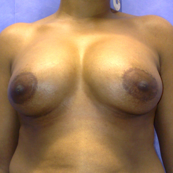 35-44 year old woman treated with Breast Augmentation after 3553725