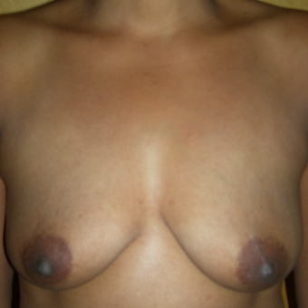 35-44 year old woman treated with Breast Augmentation before 3553725