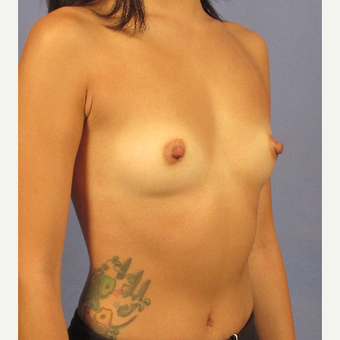 25-34 year old woman treated with Breast Augmentation before 3212605