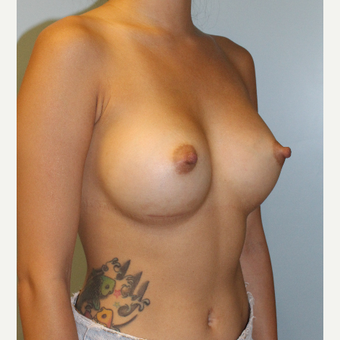25-34 year old woman treated with Breast Augmentation after 3212605