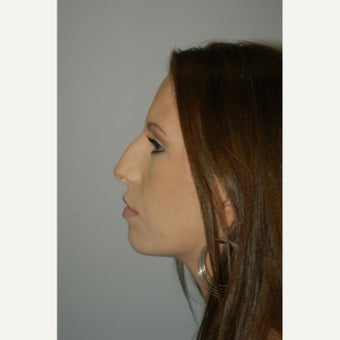 25-34 year old woman treated with Rhinoplasty before 1807160