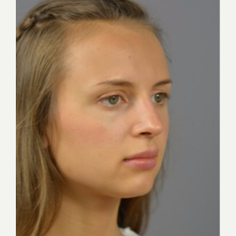 18-24 year old woman treated with Rhinoplasty after 3056386