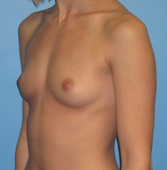 Breast Augmentation 22 Year Old 1035215