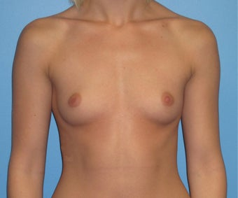 Breast Augmentation 22 Year Old before 1035215
