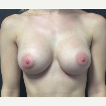 25-34 year old woman treated with Breast Augmentation after 3012184