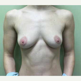 25-34 year old woman treated with Breast Augmentation before 3012184