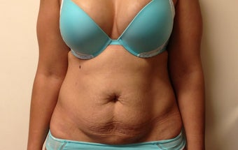 Abdominoplasty before 1190639