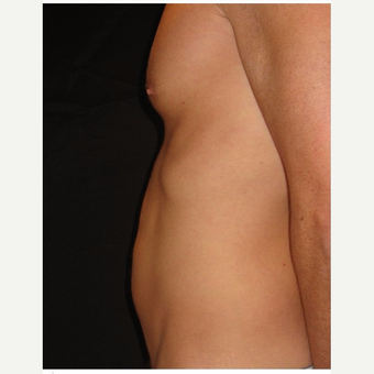 35-44 year old man treated with Liposuction before 3046615