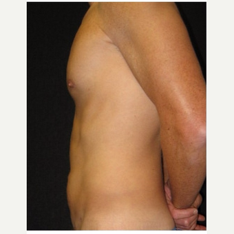 35-44 year old man treated with Liposuction after 3046615