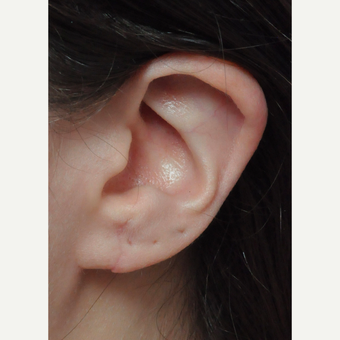 18-24 year old woman treated with Ear Lobe Surgery after 3439235