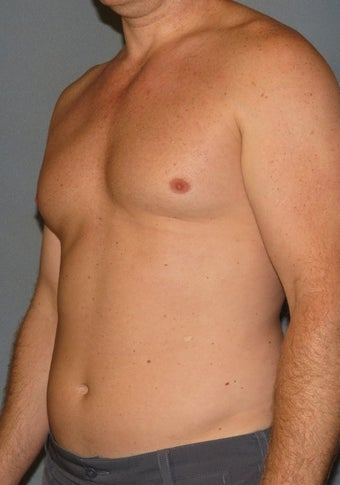 "35-44 year old man treated with ""Abdominal Etching"" Liposuction before 2038987"