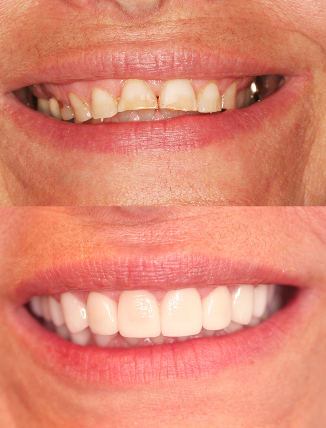 45-54 year old woman treated with Smile Makeover