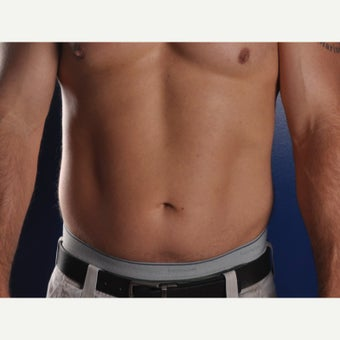 45-54 year old man treated with Liposculpture before 2077960