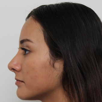17 or under year old woman treated with Rhinoplasty after 3418784