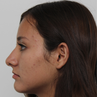 17 or under year old woman treated with Rhinoplasty before 3418784
