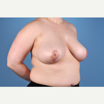 25-34 year old woman treated with Breast Reduction after 3837786