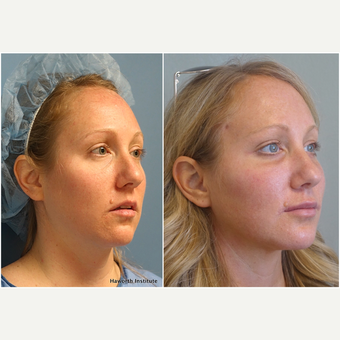 25-34 year old woman treated with Facelift before 3847240