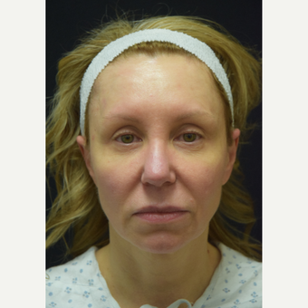 45-54 year old woman treated with Facelift before 3441792