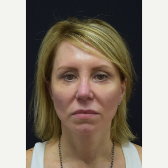 45-54 year old woman treated with Facelift after 3441792