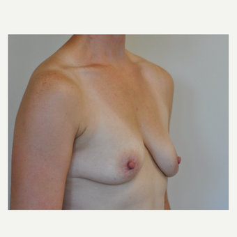 35-44 year old woman treated with Breast Augmentation before 3742616