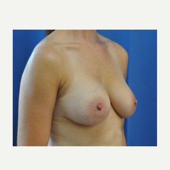 35-44 year old woman treated with Breast Augmentation after 3742616