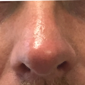 Rhinoplasty to correct multiple nasal deformities: 45-54 year old male after 3847512