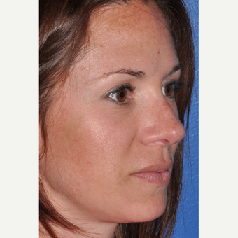 Rhinoplasty for Improved Profile and Nasal Tip after 3702949