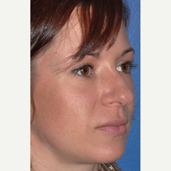 Rhinoplasty for Improved Profile and Nasal Tip before 3702949