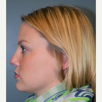 25-34 year old woman treated with Rhinoplasty after 3712250