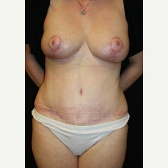 55-64 year old woman treated with Mommy Makeover after 2109680