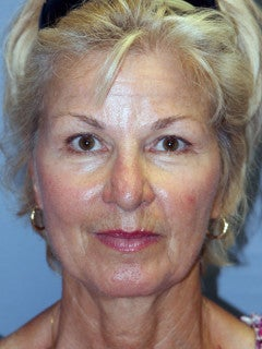 LiteLift™ and Eye Lid Surgery on 61-year-old Woman before 1235555
