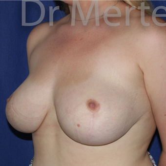 Breast Reduction after 3681231