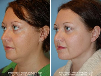 Neck Liposuction before 1389498