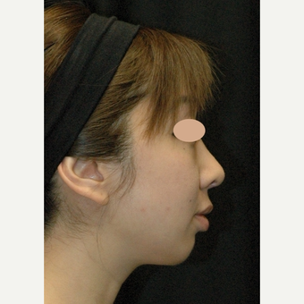 25-34 year old woman treated with Asian Rhinoplasty after 3783110