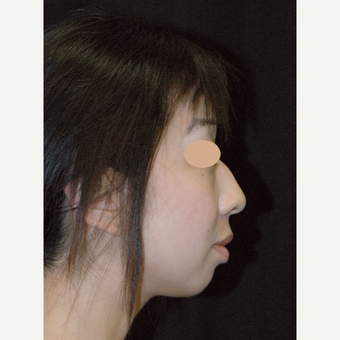 25-34 year old woman treated with Asian Rhinoplasty before 3783110